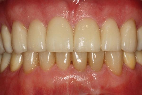 Kompleksowa terapia stomatologiczna