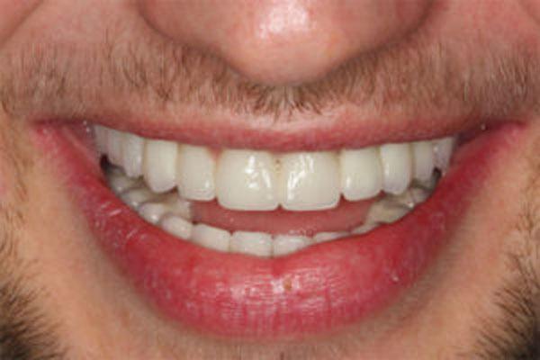 Stworzenie uśmiechu pacjenta z wrodzonym brakiem zębów