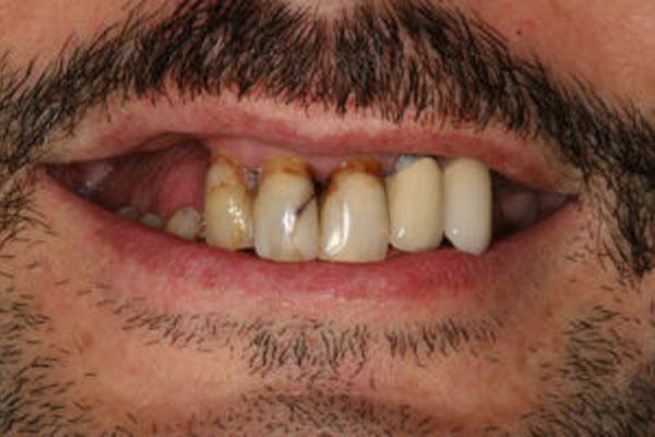 Rekonstrukcja górnego łuku na implantach