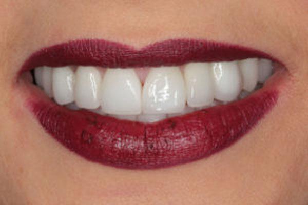 Stworzenie uśmiechu pacjentki z wrodzonym brakiem zębów