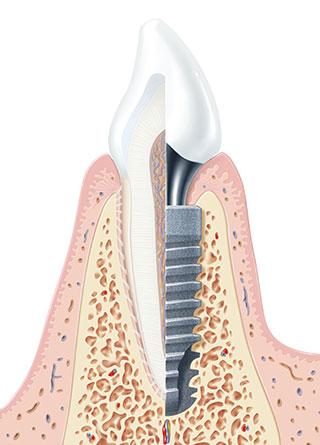 Budowa implantu - IMP